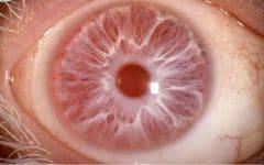 Os 5 Principais Tratamentos ParaAlbinismo Ocular