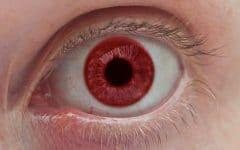 Os 4 Principais Tipos deAlbinismo Ocular