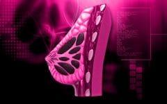 Os 10 Alimentos que Combatem Câncer de Mama