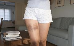Anemia Aplástica – O que é, Causas, Sintomas e Tratamentos