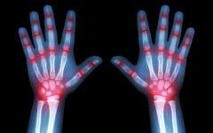 Artrite – O que é, Causas, Sintomas e Tratamentos