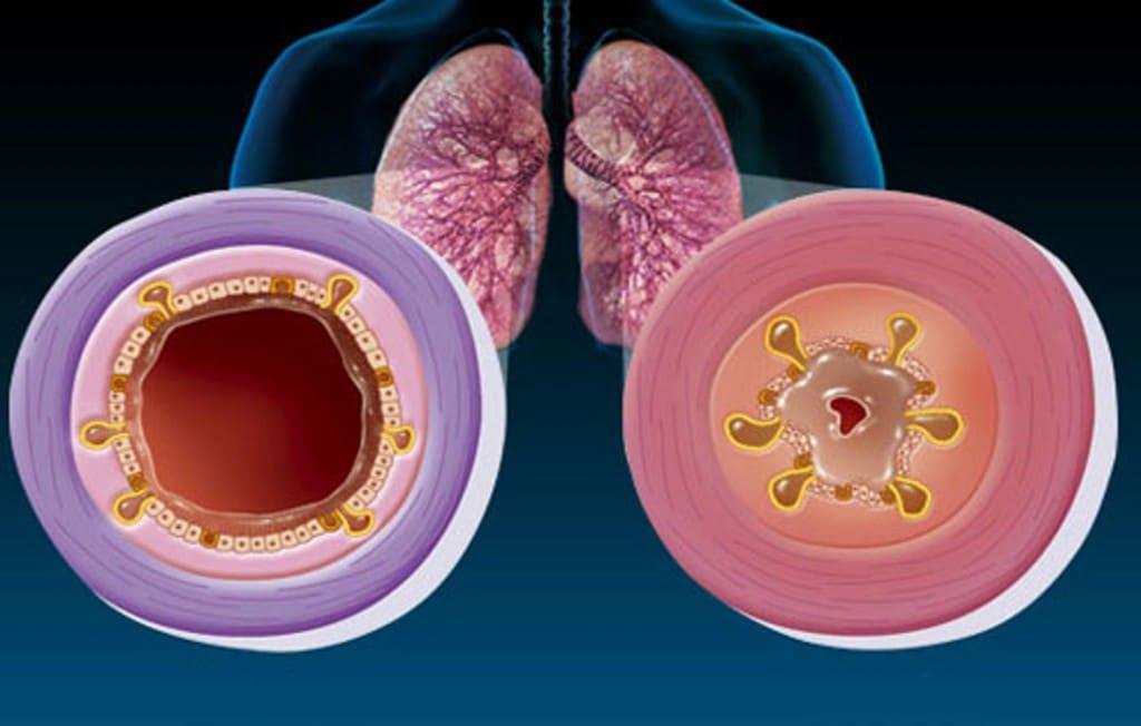 Os 10 Principais Sintomas da Bronquite