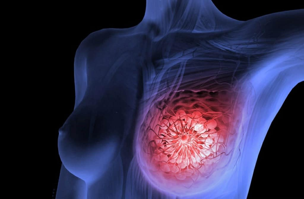Os 7 Principais Sintomas do Câncer de Mama