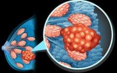 Câncer de Mama – Causas, Sintomas e Tratamentos