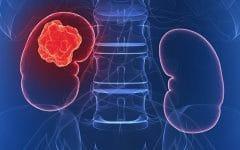 Câncer de Rim – O que é, Causas e Tratamentos