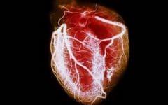 Cardiomiopatia – O que é, Causas, Sintomas e Tratamentos