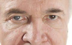Catarata – O que é, Causas, sintomas e Tratamentos