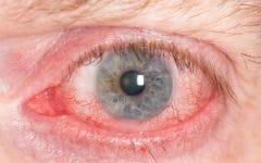 Cisticercose – O que é, Causa, Sintomas e Tratamentos