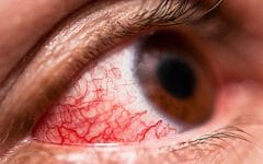 Conjuntivite – O que é Causas, Sintomas e Tratamento!