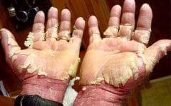 Dermatite Esfoliativa – Causas, Sintomas e Tratamentos