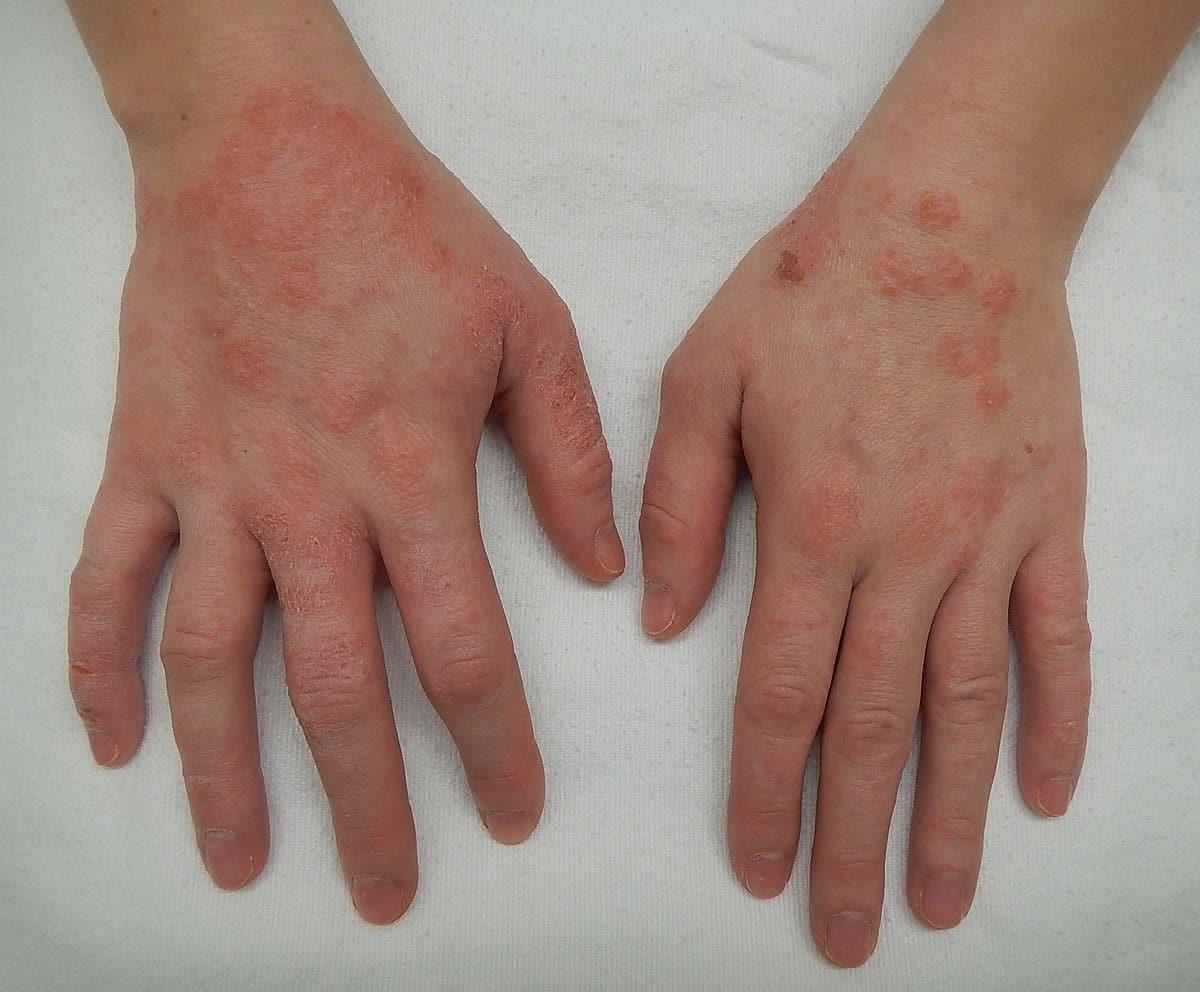 Dermatite Numular