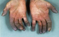 Doença de Buerger – O que é, Causas e Tratamentos