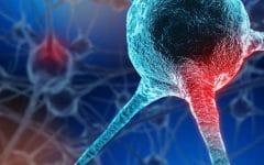 Doença de Huntington – O que é, Sintomas e Tratamentos