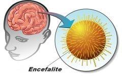 Encefalite – O que é, Causas, Sintomas e Tratamentos