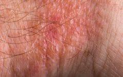 Erisipela – O que é, Causas, Sintomas e Tratamentos