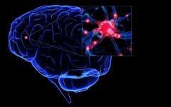 Esclerose Lateral Amiotrófica – O que é, Sintomas e Tratamentos