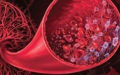 Hemoglobinúria Paroxística Noturna – Causas e Tratamentos!