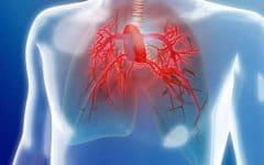 Os 6 Principais Sintomas da Hipertensão Pulmonar