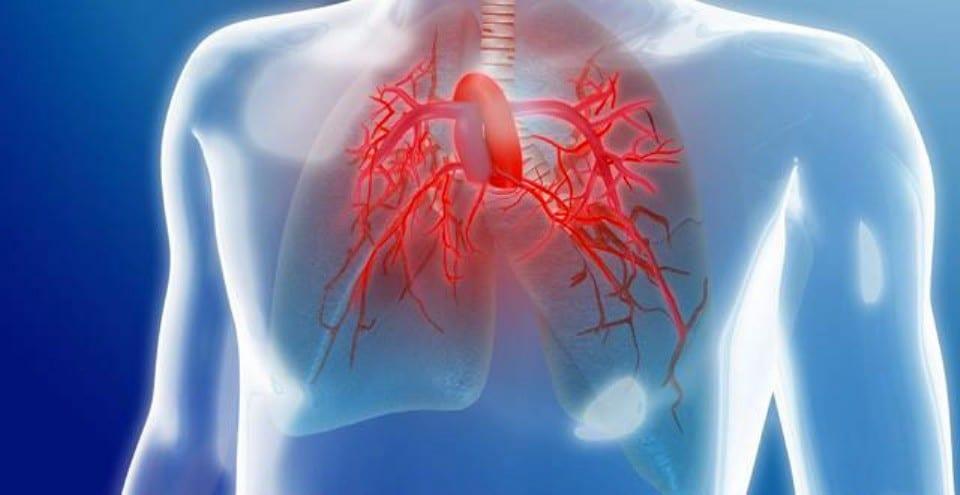 Principais Sintomas da Hipertensao Pulmonar