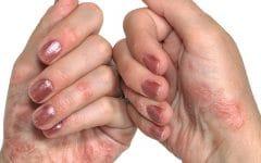 Ictiose – O que é, Causas, Sintomas e Tratamentos