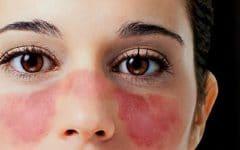 Lúpus – O que é, Causas, Sintomas e Tratamentos