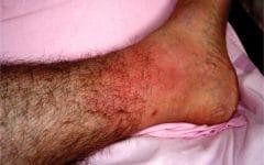 Linfangite – O que é, Causas, Sintomas e Tratamentos