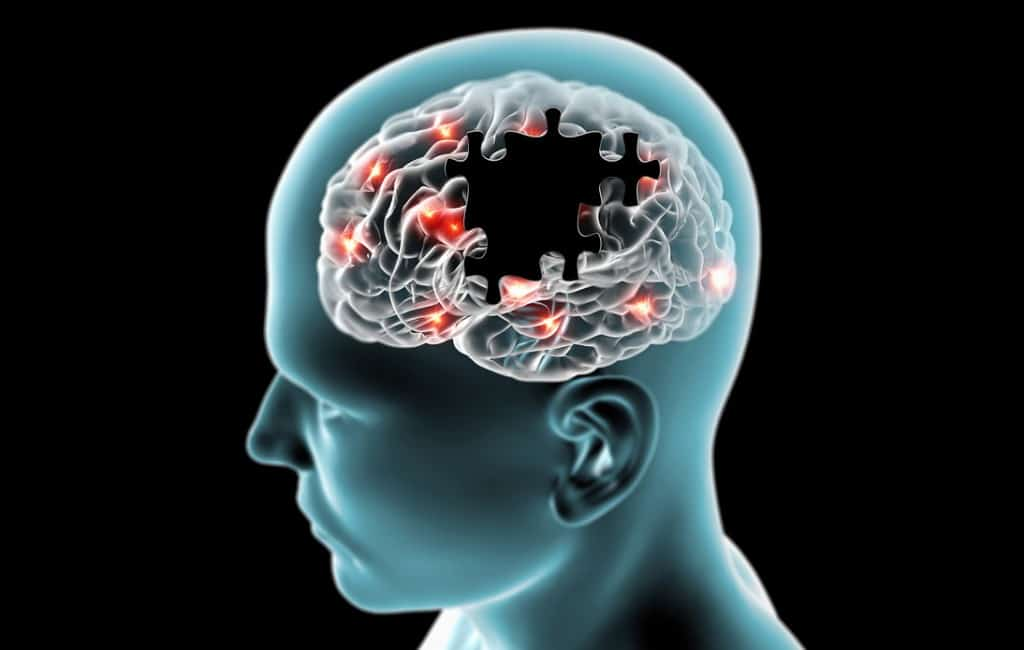 Sintomas doMal de Parkinson