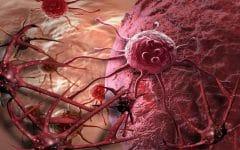 Os 17 Principais Sintomas da Neuroblastoma