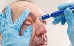 Oftalmoplegia – O que é, Sintomas e Tratamentos