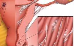 Peritonite – O que é, Causas, Sintomas e Tratamentos