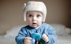 Plagiocefalia – O que é, Causas e Tratamentos