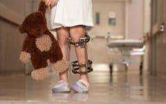 Poliomielite – O que é, Causas, Sintomas e Tratamentos