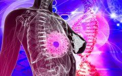 Os 10 Principais Sintomas de Câncer de Mama!