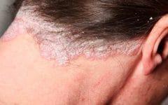 Psoríase no Couro Cabeludo – Causas, Sintomas e Tratamentos