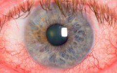 Os 9 Principais Sintomas daRosácea Ocular