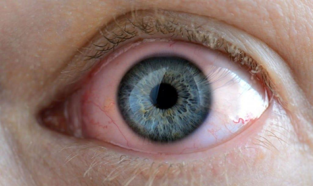 Causas da Rosácea Ocular