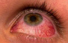 Rosácea Ocular – O que é, Causas, Sintomas e Tratamentos