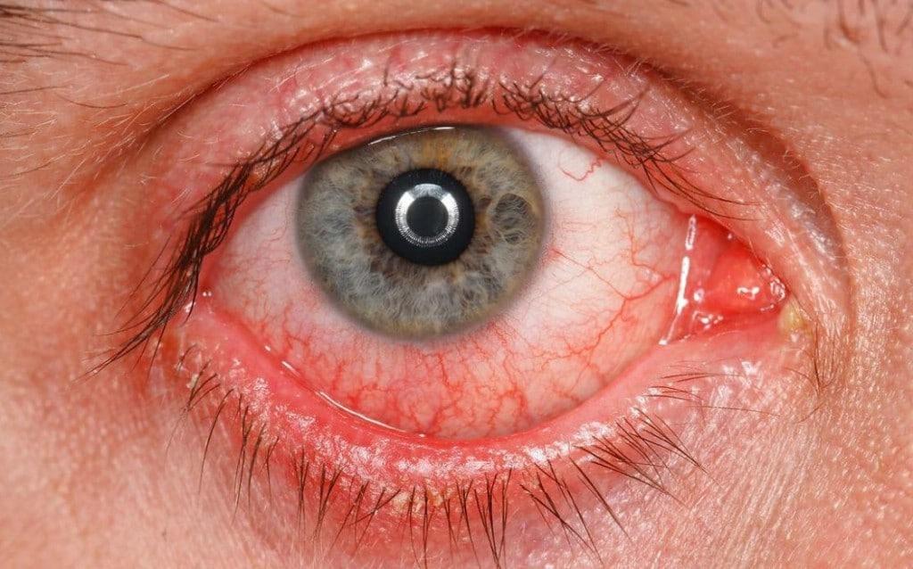 Sintomas do Rosácea Ocular