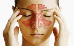 Os 10 Principais Sintomas da Sinusite