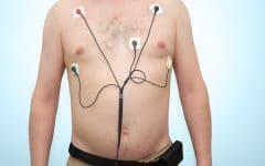 Taquicardia – O que é, Causas, Sintomas e Tratamentos