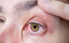 Uveíte – O que é, Causas, Sintomas e Tratamentos!