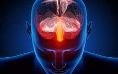 Vertebrobasilar – O que é, Sintomas e Tratamentos