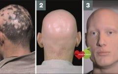 Alopecia Universal – O que é, Causas e Tratamento