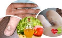 Os 10 Remédios Caseiros Para Remover as Verrugas