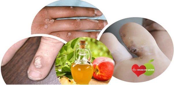 Remedios Caseiros Para Remover as Verrugas