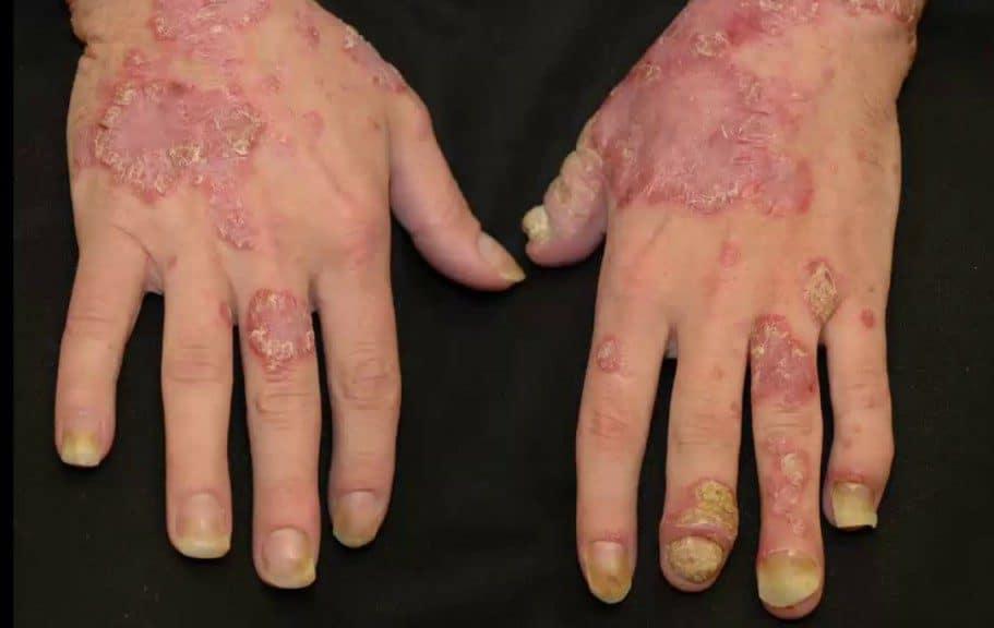 Os 8 Principais Sintomasde Artrite Psoriática