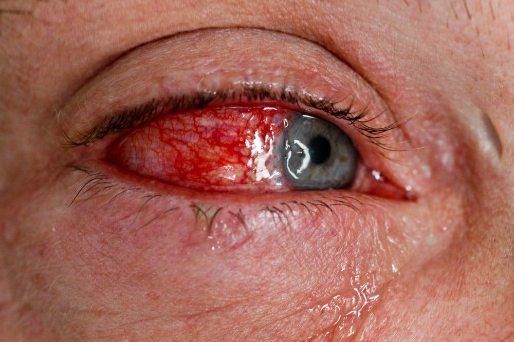 Os 10 Principais Sintomasde Artrite Reativa