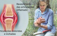 Os 11 Principais Sintomas daArtrite Reumatoide!