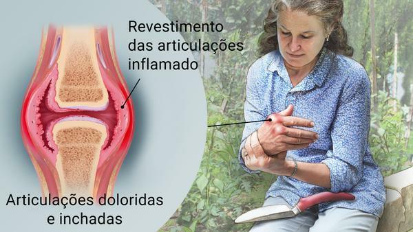 Os 11 Principais Sintomas daArtrite Reumatoide