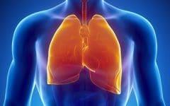 Asbestose – O que é, Causas, Sintomas e Tratamentos